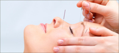 Facial Rejuvenation Using Dry Needling Works