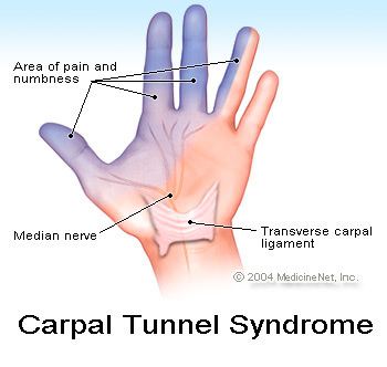 Carpal Tunnel Syndrome - What's the Best Treatment
